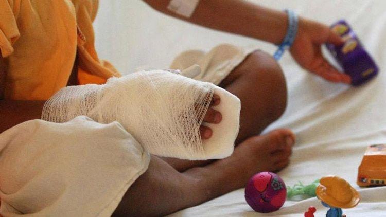 Un menor de 13 años de edad resultó con amputación de una de las falanges distales en la mano derecha y quemaduras de segunda mano.