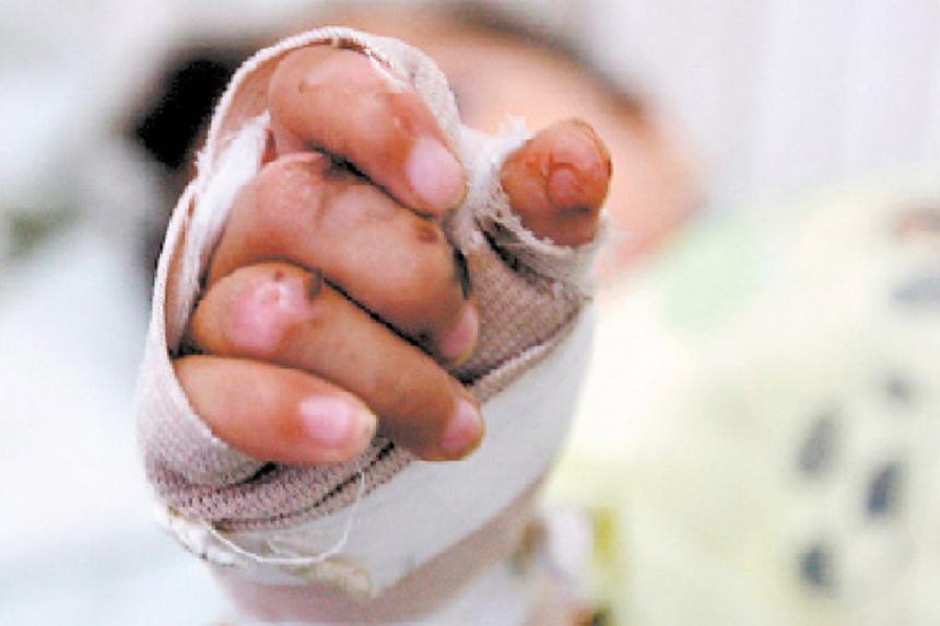 Los días en que se presentaron lesionados fueron, el tres de diciembre con un caso, siete de diciembre con dos casos.