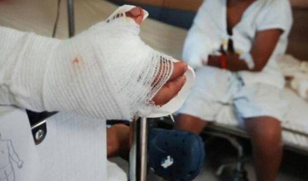 Mujer wayúu perdió dedos de su mano al explotarle una bolsa de basura