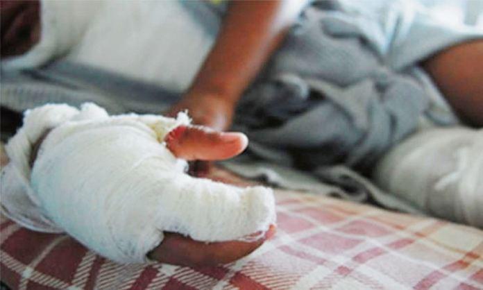 Cerca de 600 personas resultaron quemadas con pólvora en el país