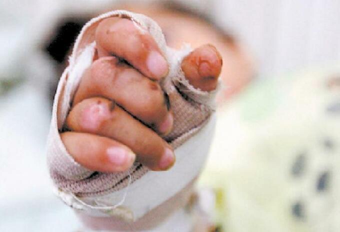 Menor murió por quemaduras de 2 grado en Neiva